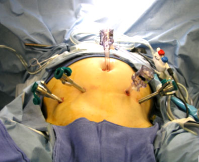 Nationwide minimally invasive surgery rates triple for pancreatic disease